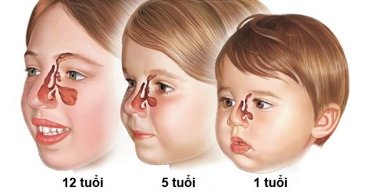 Viêm xoang ở trẻ em hay còn gọi là viêm xoang mũi là một tình trạng nhiễm trùng lớp niêm mạc lót trong các khoang xoang ở trẻ