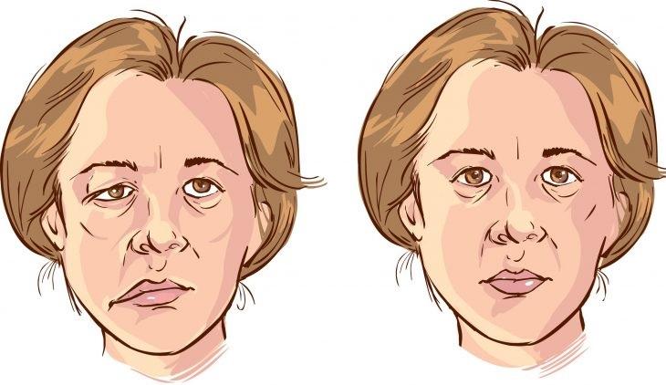Huyệt Địa Thương có tác dụng trị các bệnh liên quan đến thần kinh mặt, trong đó có méo miệng