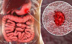 Bệnh đau dạ dày có mấy cấp độ
