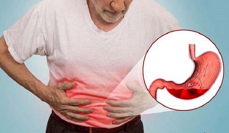 Người béo phì có nguy cơ cao mắc đau dạ dày