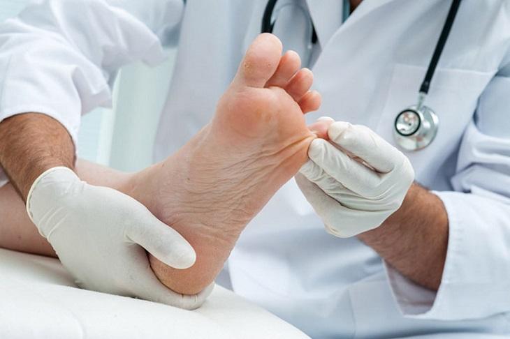 Người bị bệnh tổ đỉa cần điều trị theo hướng dẫn của bác sĩ