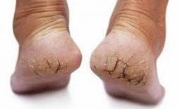 Bị nứt gót chân phải làm sao?