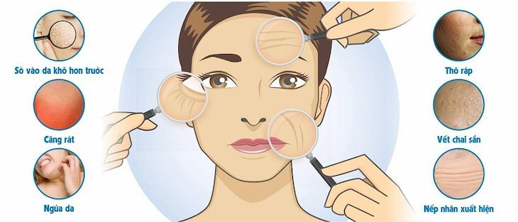Các biểu hiện da mặt bị thiếu nước