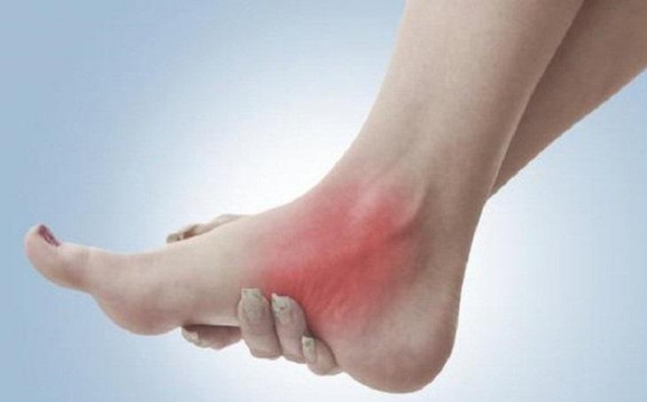 Bong gân khiến người bệnh cảm thấy đau nhức và không thể hoạt động như bình thường