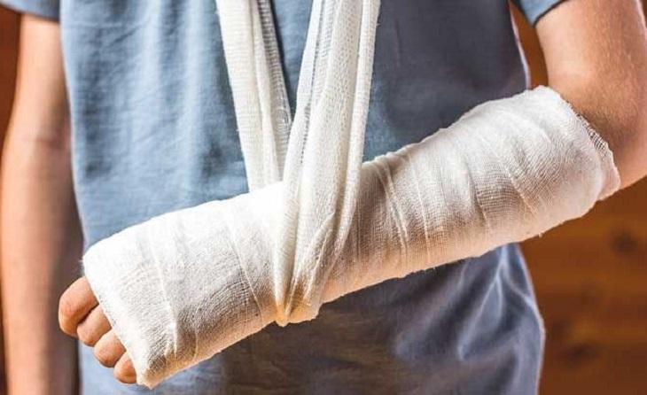 Bó bột là phương pháp điều trị phổ biến nhất khi bị bong gân bàn tay và bộ phận khác ở tay