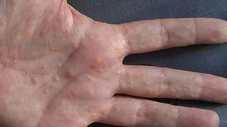 Chàm tổ đỉa là một thuật ngữ chỉ bệnh lý thuộc thể đặc biệt của bệnh chàm (Eczema)