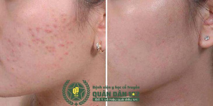 Cải thiện nhanh các triệu chứng khó chịu trên da