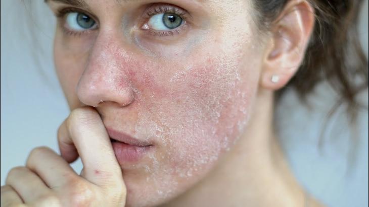 Da mặt bị khô sần và ngứa