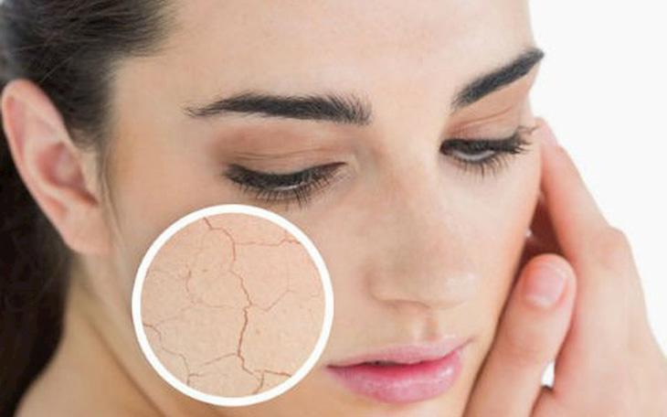 Da mặt khô nứt nẻ phải làm sao?