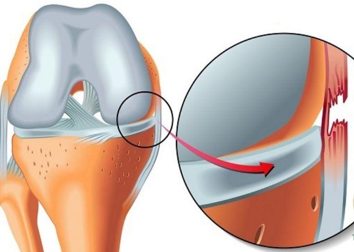 Giãn dây chằng là tình trạng cơ bị kéo căng quá mức và không dứt hoàn toàn