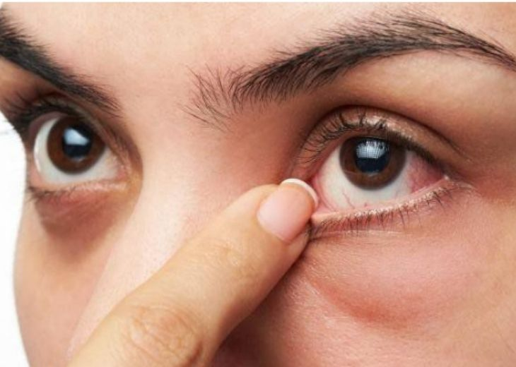 Huyệt tình minh chữa các bệnh về mắt