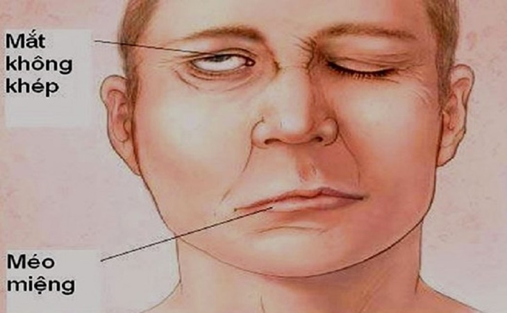 Bấm huyệt Quỷ Sàng chữa liệt mặt