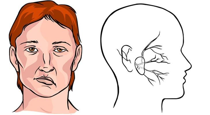 Bấm huyệt Hạ Quan chữa liệt mặt