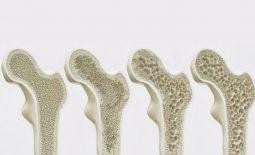 Loãng xương