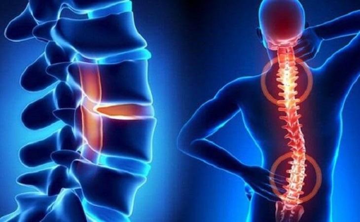 Bệnh xương khớp là nguyên nhân phổ biến gây ra tình trạng ngồi lâu bị đau lưng
