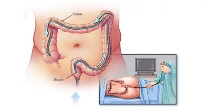 Nội soi đại tràng giúp bác sĩ chẩn đoán bệnh chính xác