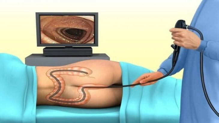 Thủ thuật nội soi phần đại tràng sigma