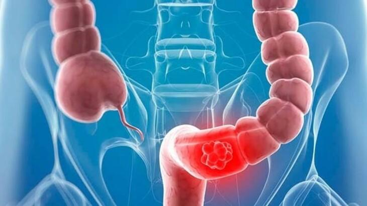 Nội soi sinh thiết lấy mô tại đại tàng sigma