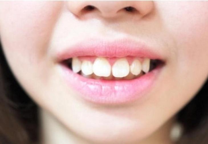 Sai khớp cắn gây mất tự tin khi nói chuyện và ăn uống