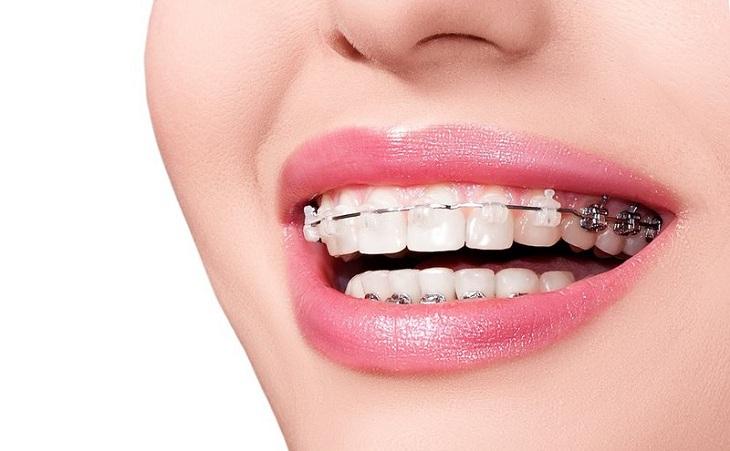 Niềng răng là phương pháp được nhiều người thực hiện nhất hiện nay
