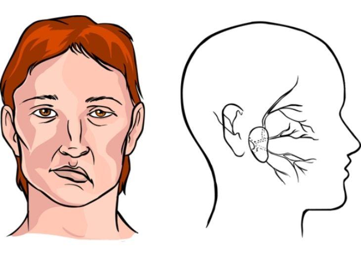 Điều trị hiện tượng liệt mặt ngoại biên hay liệt dây thần kinh số VII ngoại biên gây ra