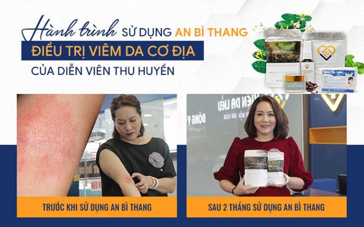Nhờ sử dụng An Bì Thang, tình trạng viêm da cơ địa của nghệ sĩ Thu Huyền đã được cải thiện tích cực sau 2 tháng