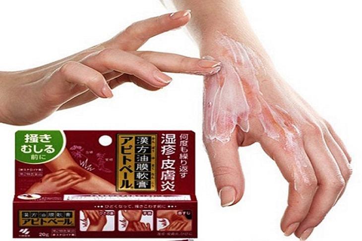 Kem bôi trị tổ đỉa Keratinamin là sản phẩm được sản xuất tại Nhật Bản