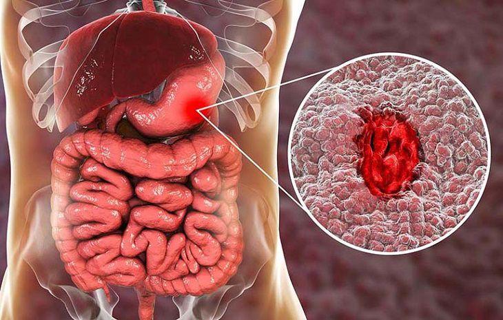 Một trong những biến chứng vô cùng nguy hiểm là xuất huyết dạ dày