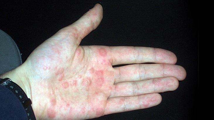 Người bệnh xuất hiện nhiều mụn nước ăn sâu vào lòng bàn tay, bàn chân