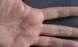Bệnh tổ đỉa là một thể bệnh rất đặc biệt của bệnh chàm