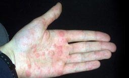 Người bệnh có thể bị tổ đỉa do nhiễm trùng, nhiễm khuẩn