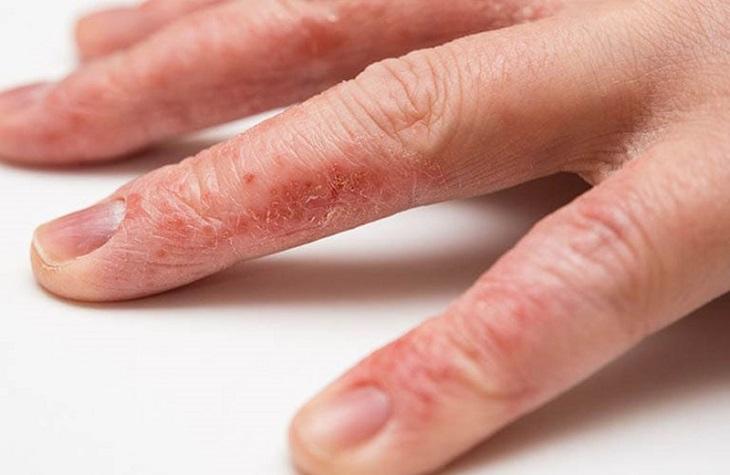 Bệnh tổ đỉa ở tay là một dạng của bệnh tổ đỉa khi các mụn nước mọc khu trú tại lòng bàn tay, kẽ ngón tay và rìa ngón tay