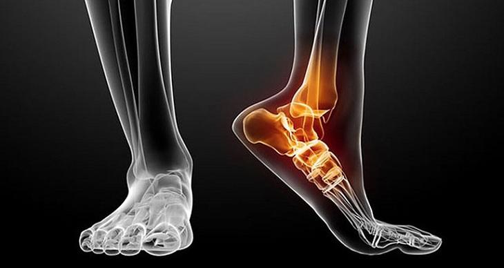 Người bệnh có thể bị gãy xương khi gặp phải chấn thương trật chân