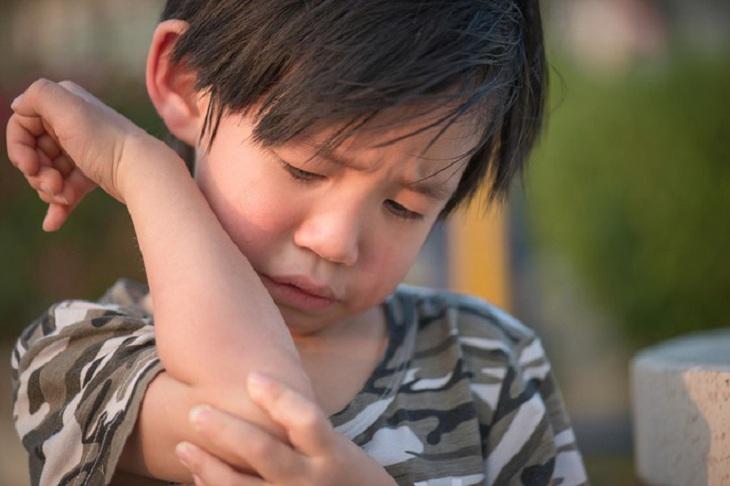 Trật khớp tay ở trẻ em là chấn thương khá phổ biến hiện nay