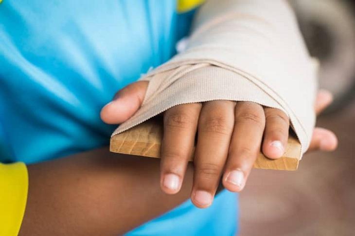 Trật khớp tay phải làm sao, người bệnh thường phải cố định bằng nẹp hoặc băng y tế
