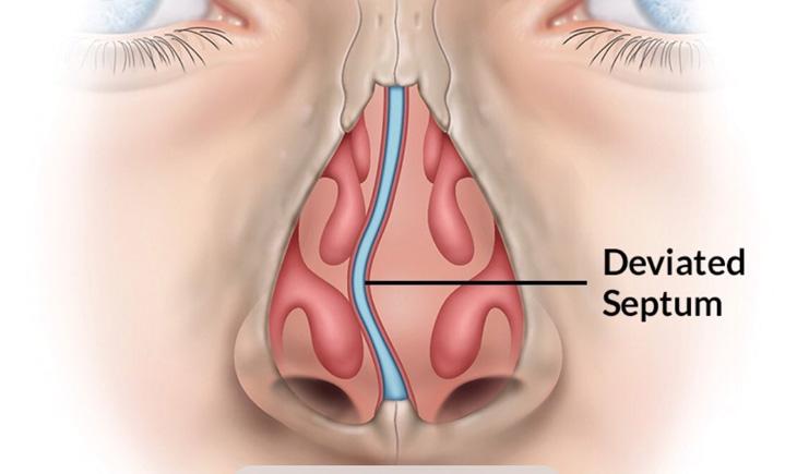 Cấu tạo mũi bất thường tạo điều kiện cho viêm xoang phát triển