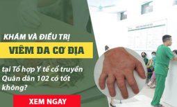 chữa viêm da cơ địa Quân dân 102