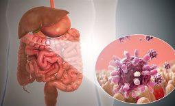 Viêm dạ dày ruột cấp là tình trạng đường tiêu hóa bị tấn công