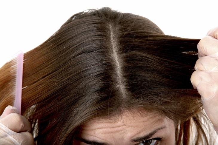 Viêm da tiết bã rụng tóc tuy là bệnh da liễu phổ biến nhưng lại thuộc nhóm bệnh lành tính