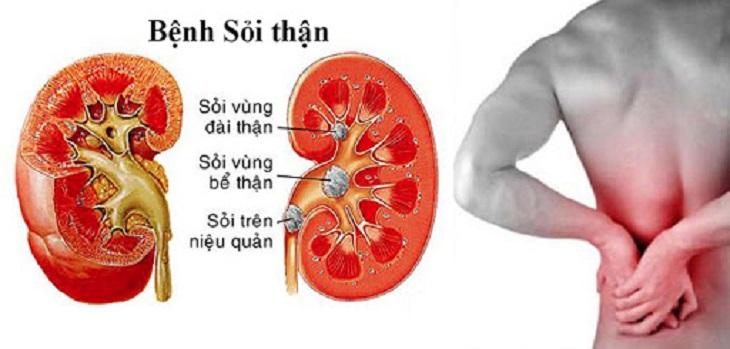 =Sỏi thận khi để lâu ngày không chữa trị dễ sinh rất nhiều biến chứng có hại cho sức khỏe