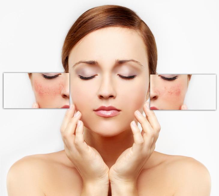 Các triệu chứng thường gặp của da nhạy cảm