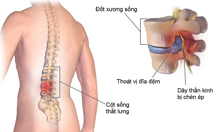 Thoát vị đĩa đệm khiến người bệnh đau đớn, khó khăn trong vận động