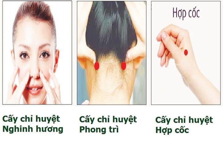 Cấy chỉ chữa bệnh viêm xoang mũi an toàn, hiệu quả, không xâm lấn sâu làm giảm nhanh các triệu chứng khó chịu ngay từ lần đầu tiên