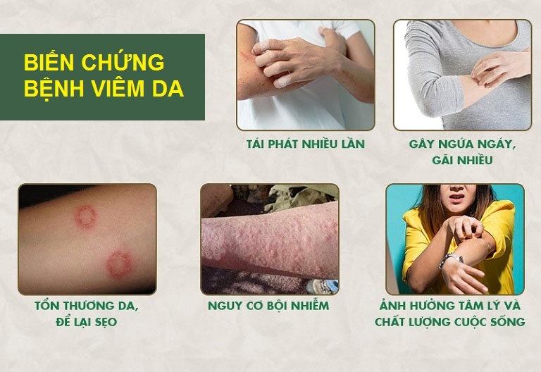 Viêm da nếu điều trị sai cách có thể dẫn tới nhiều biến chứng nghiêm trọng