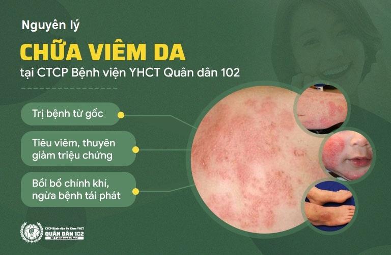 Nguyên lý điều trị viêm da từ trong ra ngoài tại CTCP Bệnh viện Quân dân 102