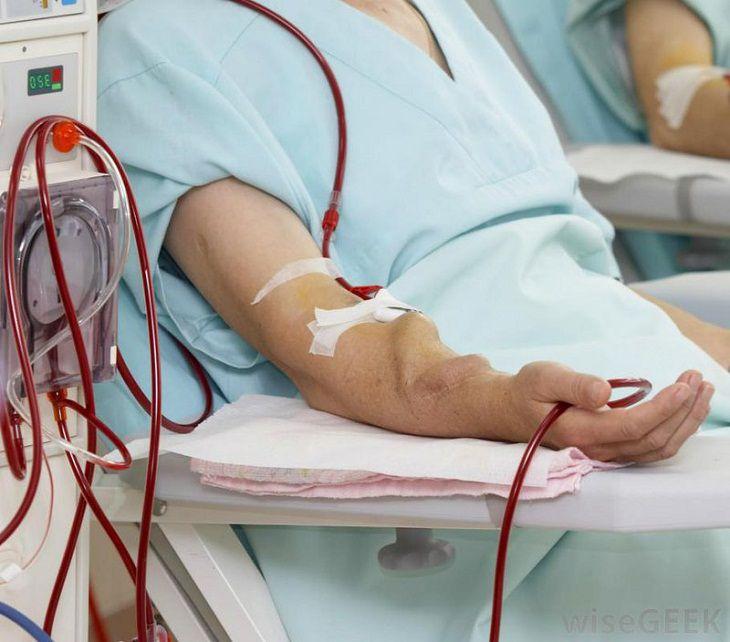 Khi cần các bác sĩ sẽ chỉ định can thiệp ngoại khoa.
