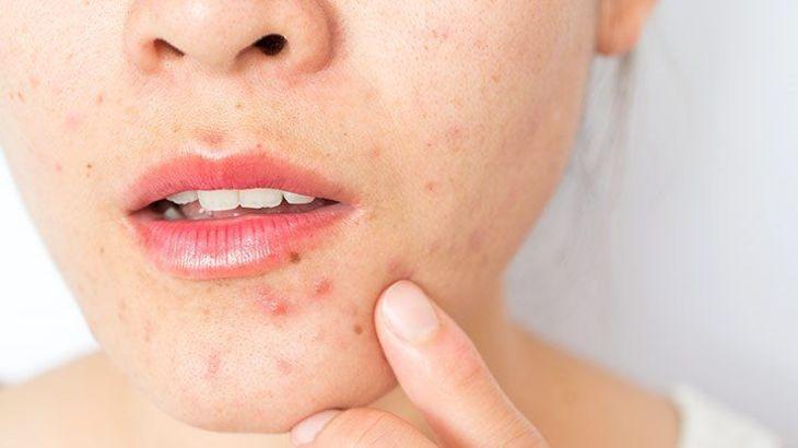 Phương pháp điều trị da khô mụn