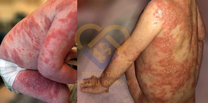 Một bệnh nhân nhỏ tuổi đã điều trị dứt điểm vảy nến bằng bài thuốc An Bì Thang