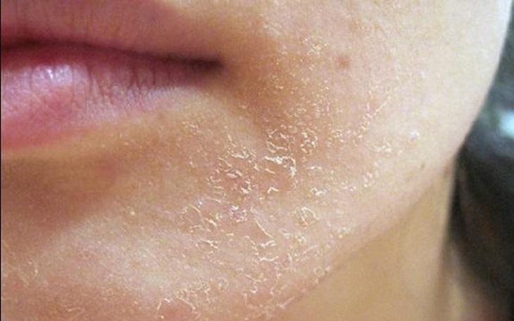 Da khô là làn da luôn trong tình trạng thiếu nước, bởi hàm lượng lipid bị thiếu hụt và không thể cấp ẩm cho da