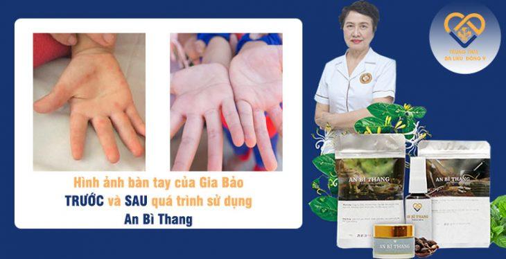 Với tính an toàn của bài thuốc, trẻ em cũng có thể sử dụng mà không lo ngại ảnh hưởng đến sức khỏe và làn da